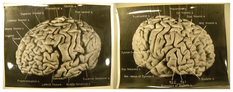 """Einstein's brain,"" photos by Thomas Harvey, 1955."